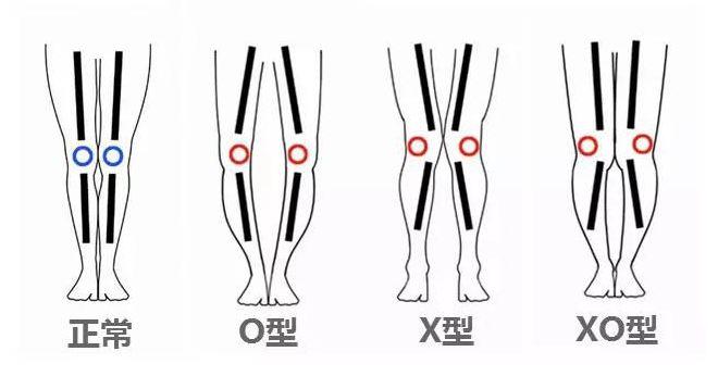 舍宾训练改变X型腿、O型腿、XO型腿